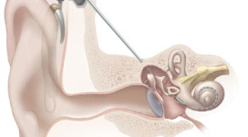Cochlear_implant (1)